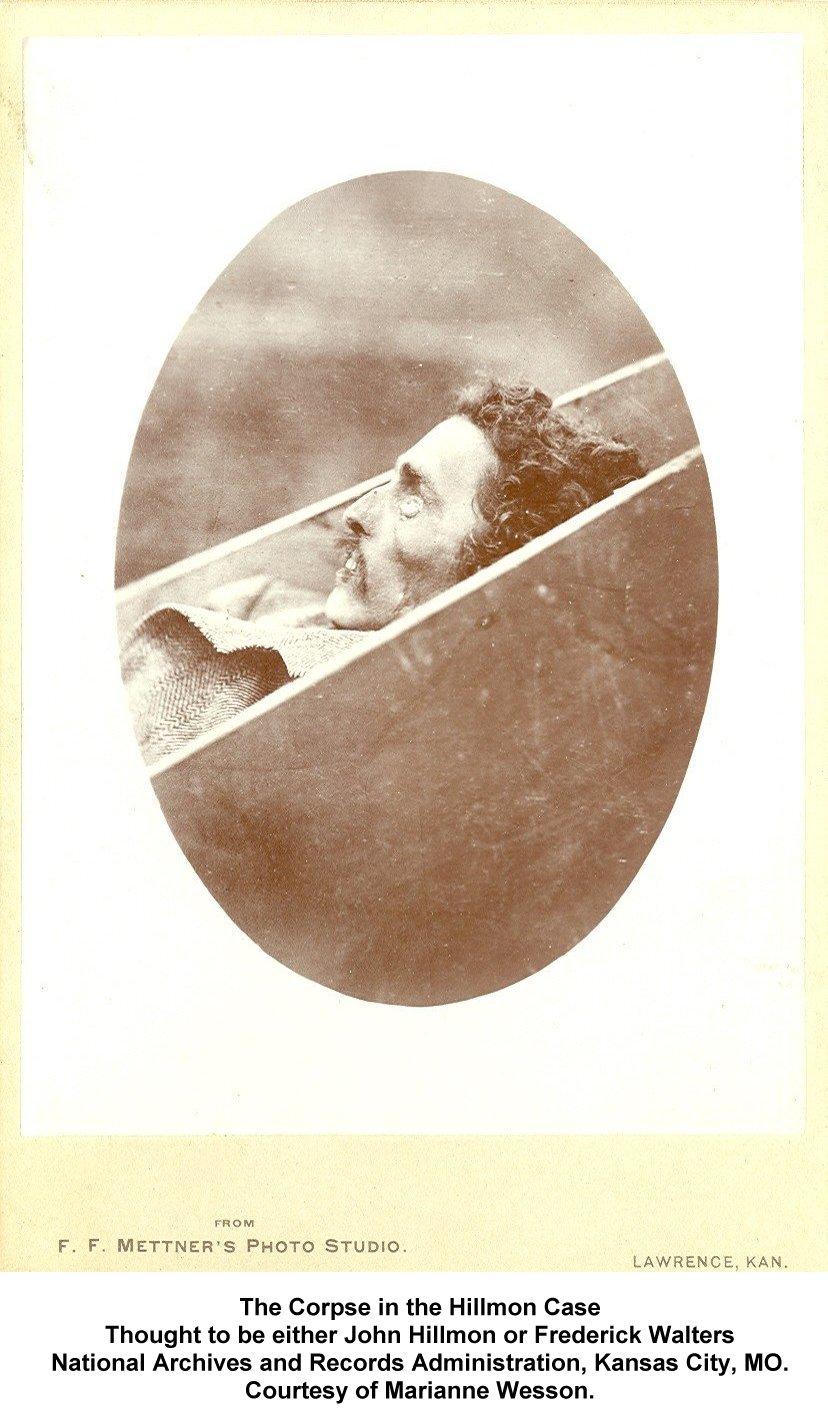 hillmoncase_corpse_profile_1[1]